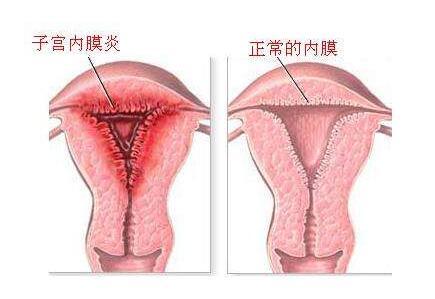 做完子宫内膜炎手术后会影响怀孕吗?